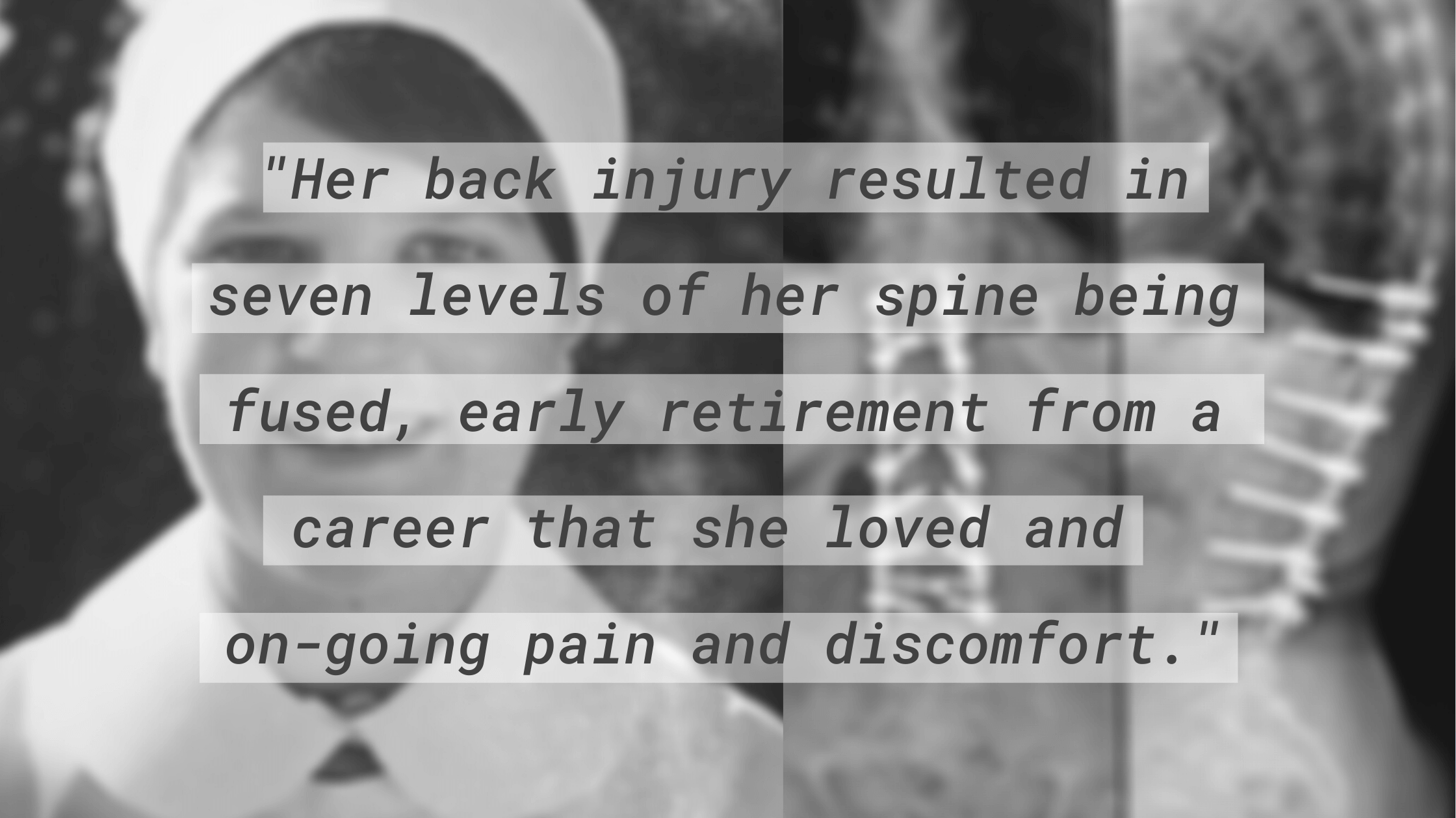 """""""Her back injury resulted in seven levels of her spine being fused, early retirement from a career that she loved and on-going pain and discomfort."""""""