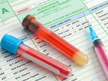 Is post-accident drug testing permissible?