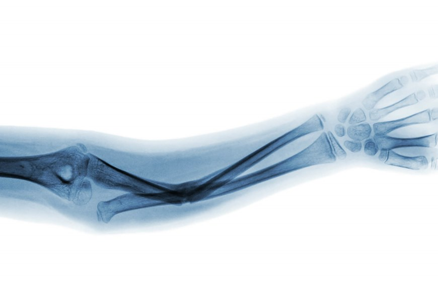 First aid for bone fractures